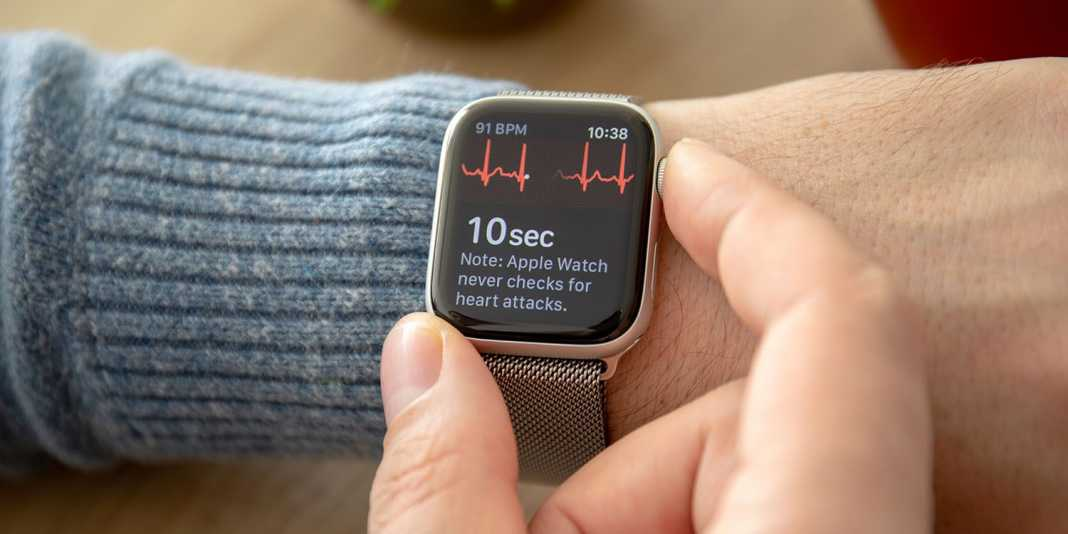 Apple Smartwatch With ECG