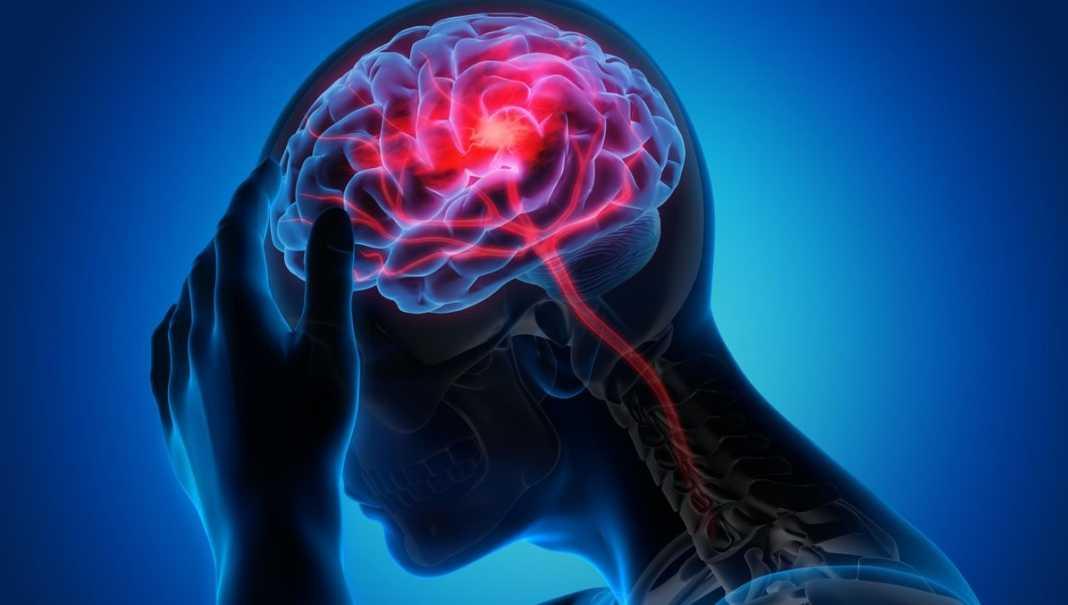 Blood Clot in Brain
